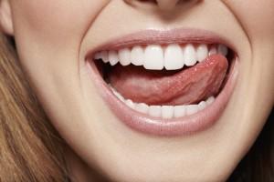 sorriso faccette dentali