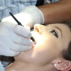 Impianti dentali: gli specialisti dello studio Cannizzo